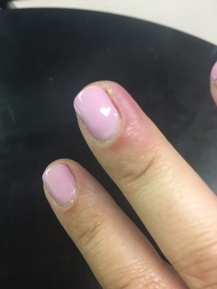 I got an infection at this nail salon. It\'s been a week since I went ...