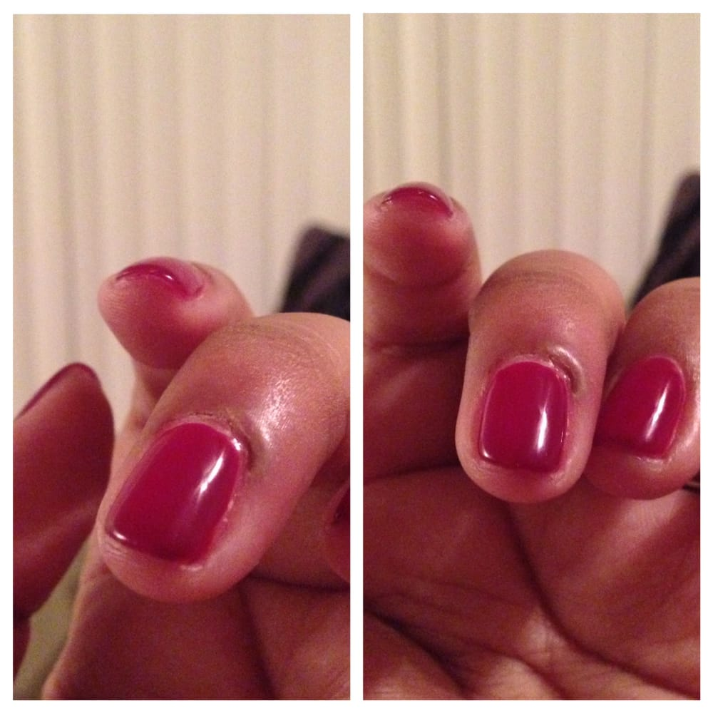Swollen blister after getting an infection from cut I got during ...
