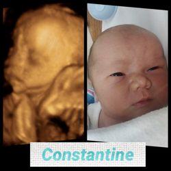 Baby Inside Me 3d Ultrasound 123 Photos Diagnostic Imaging