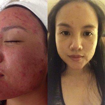 Beautymed Spa Wellness & Skin Care Clinic - (New) 59 Photos