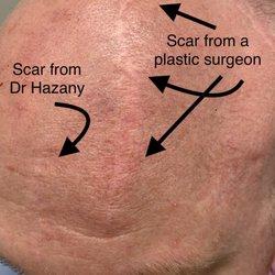 Salar Hazany, MD - 35 Photos & 48 Reviews - Dermatologists