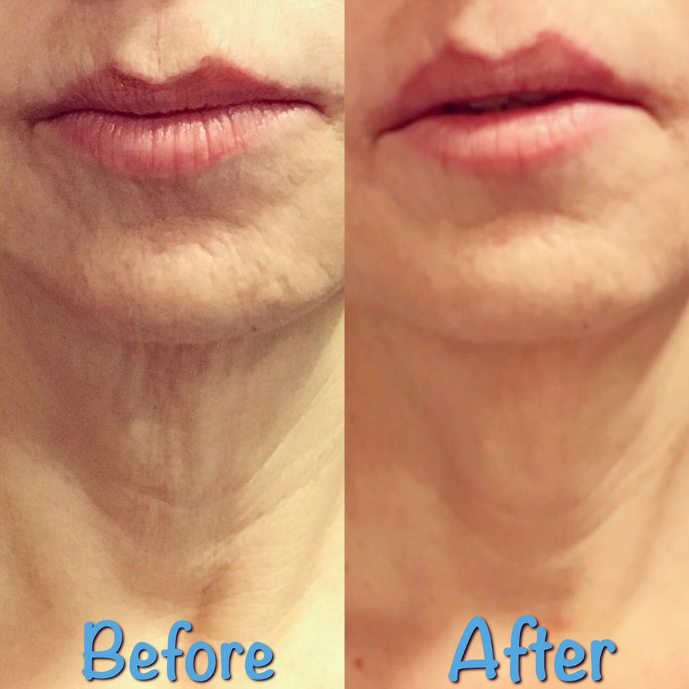 Before After Botox For Neck Rejuvenation Platysma Muscle Banding