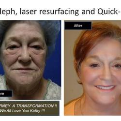 Not necessary quick facial surgery