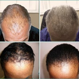 hair loss Denver