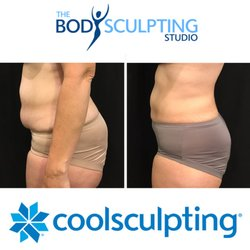 The Sculpting Studio - 44 Photos & 20 Reviews - Weight Loss ... on