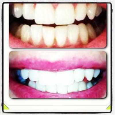 Photo For Whites Teeth Whitening