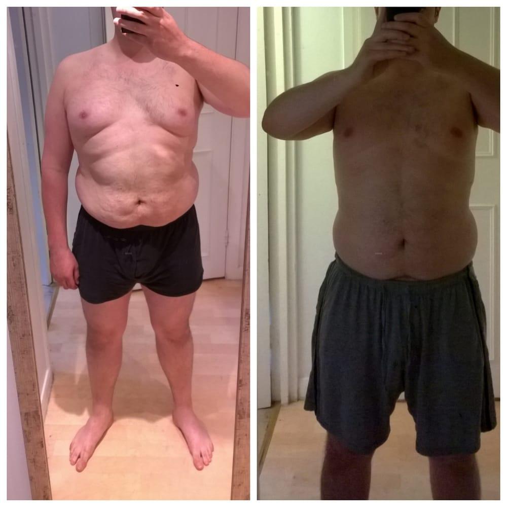 Weight loss doctor woodbridge va