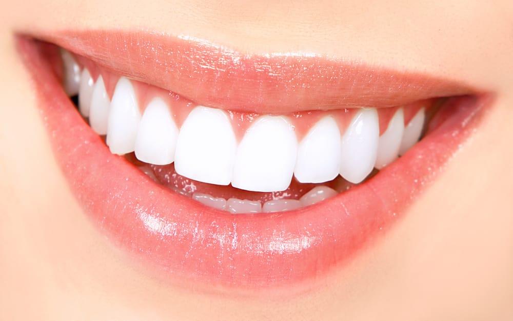 Premier Braces - 26 Reviews - Orthodontists - 9225 Mira Mesa