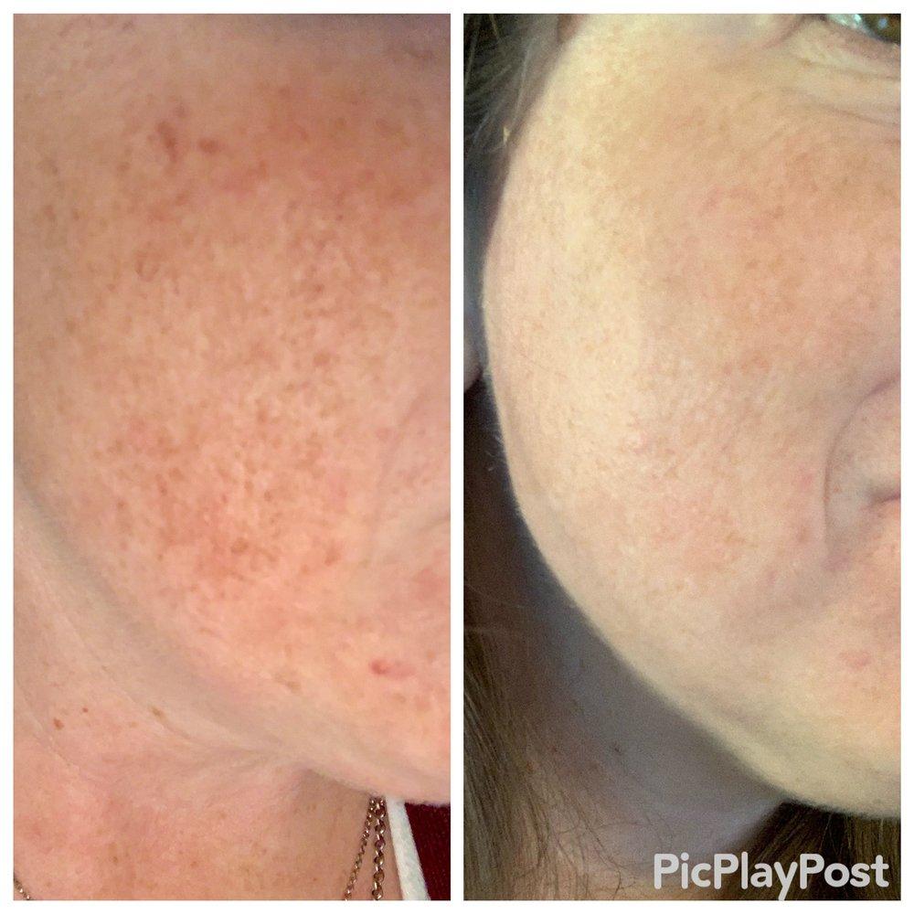 True Skin Laser Spa