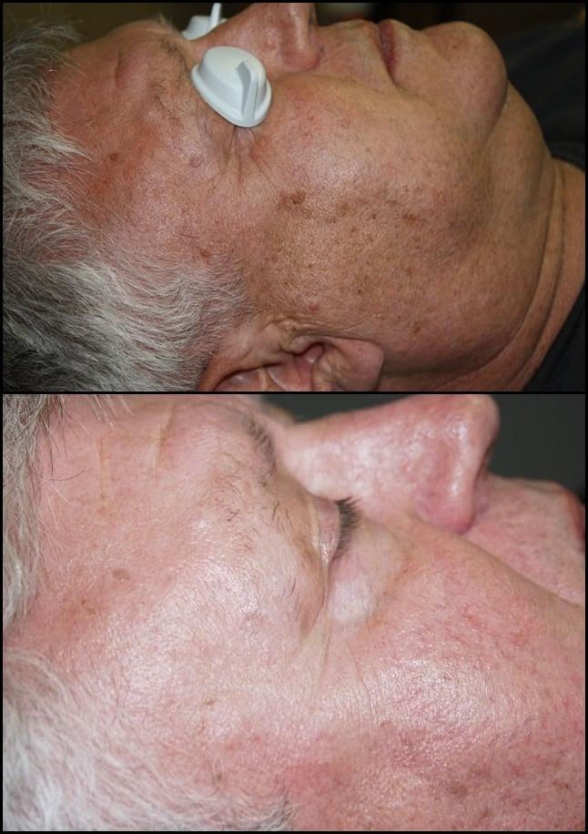 Vanish Laser Tattoo Removal And Skin Aesthetics - 32 fotos ...