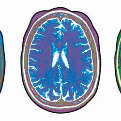 Brain and Spine Center of Texas - Neurologist - 3060 Communications