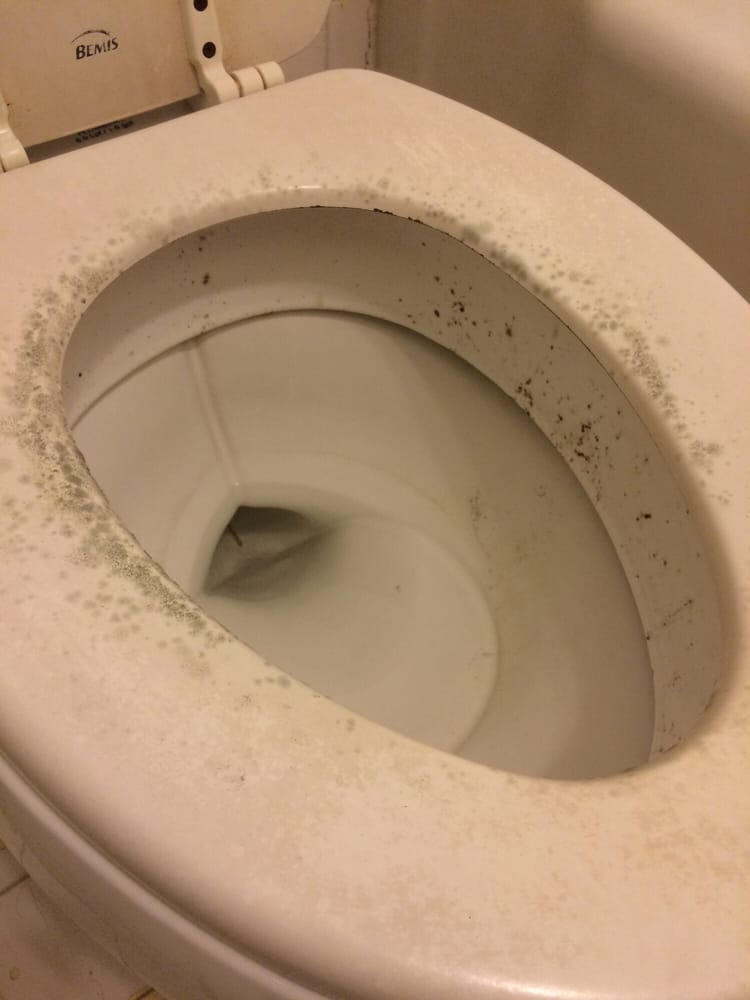Mold growing out of toilet! - Yelp
